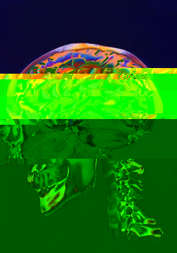 brain.jpg